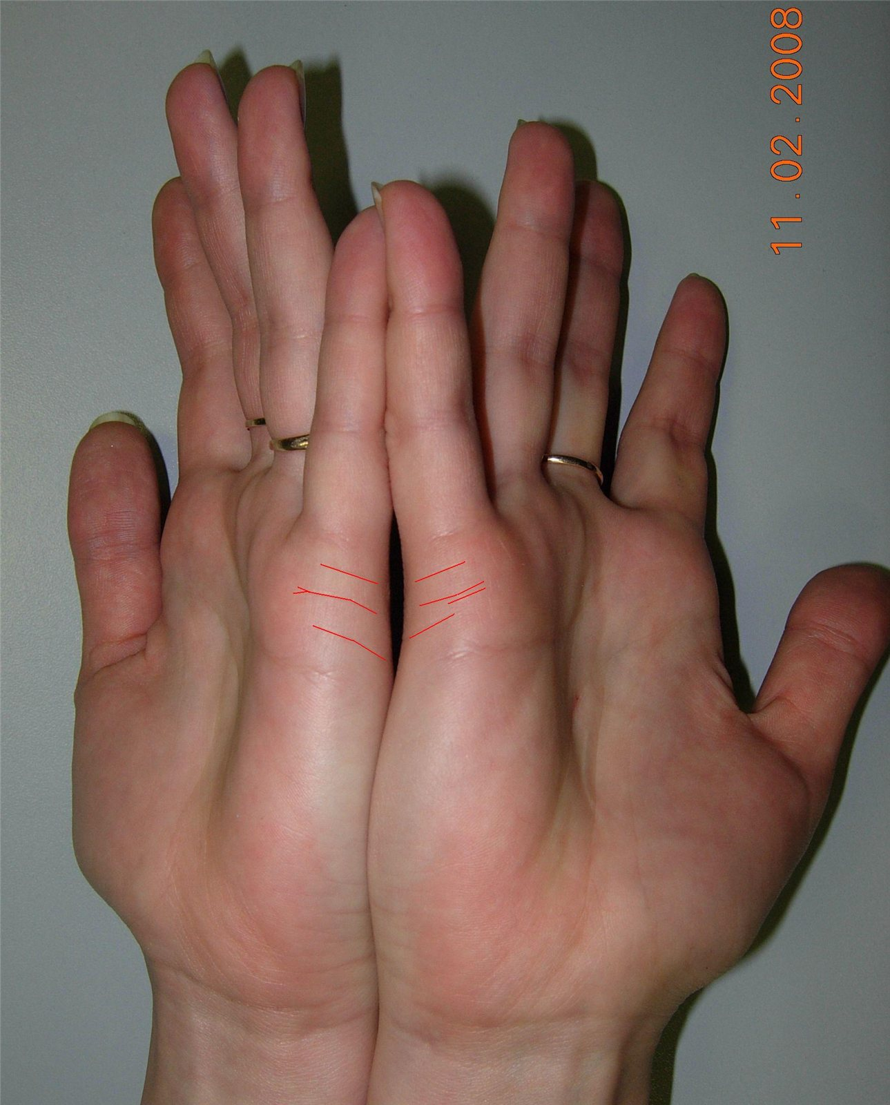 Как посмотреть на руке сколько будет браков и детей фото