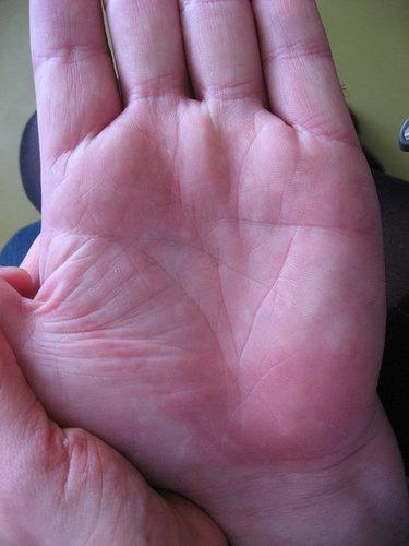 Например, треугольник на левой руке на линии жизни несет очень много информации о человеке